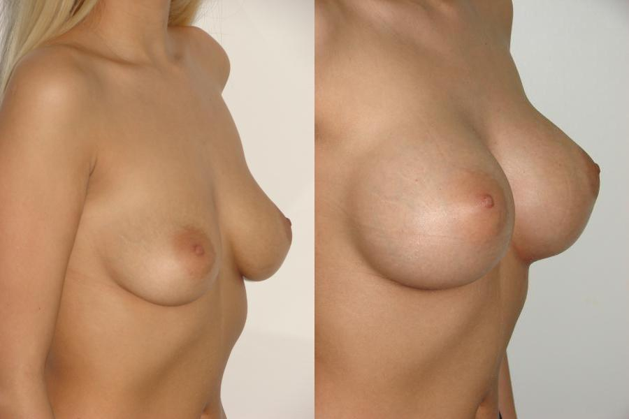 фото грудь 3го размера