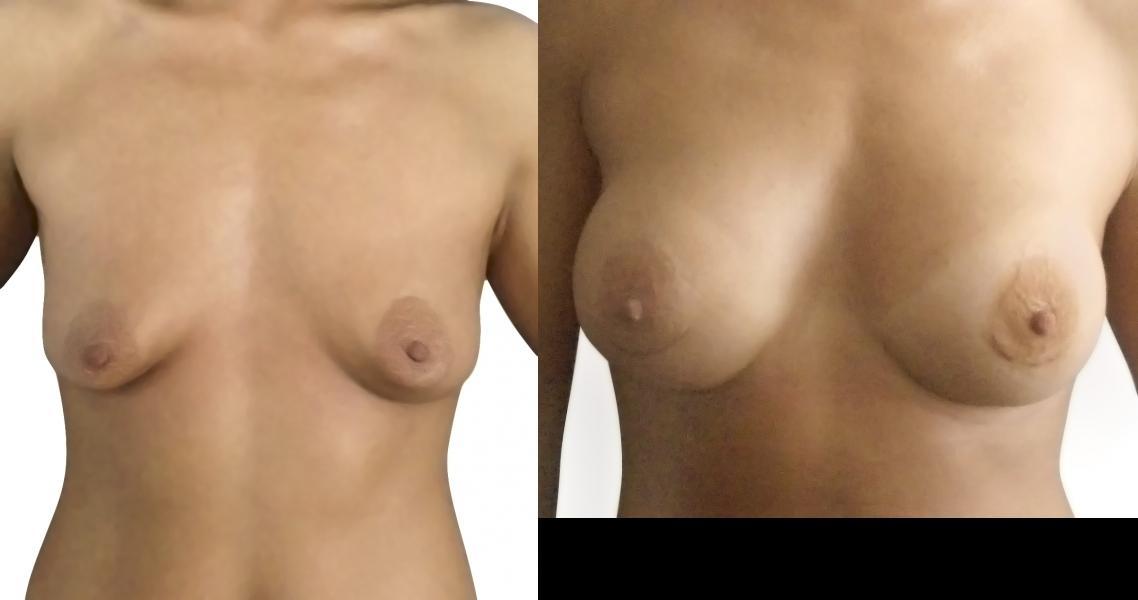 женская грудь беременная порно