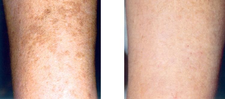 La pigmentation de la peau de la poitrine et le dos