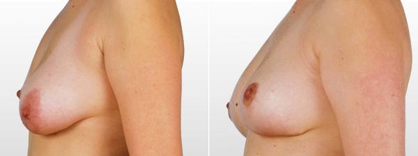 тубулярная грудь фото